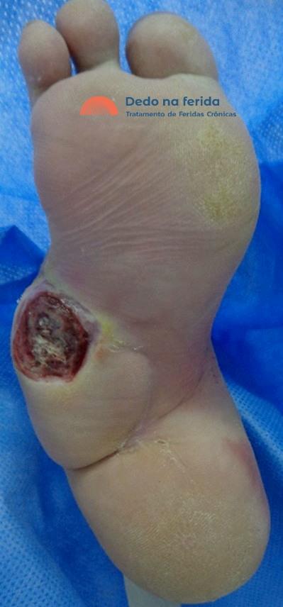 ulcera neuropatica